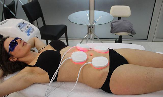 процедуры удаления жира живота